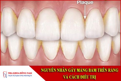 nguyên nhân gây mãng bám trên răng và cách điều trị