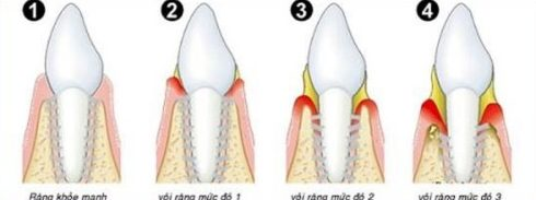 nguyên nhân gây mãng bám trên răng