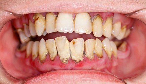 Nguyên nhân gây mảng bám trên răng và cách điều trị 3
