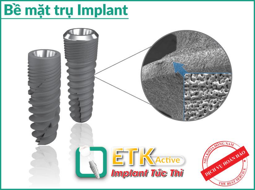 nha khoa đông nam ra mắt implant mới - etk active 2
