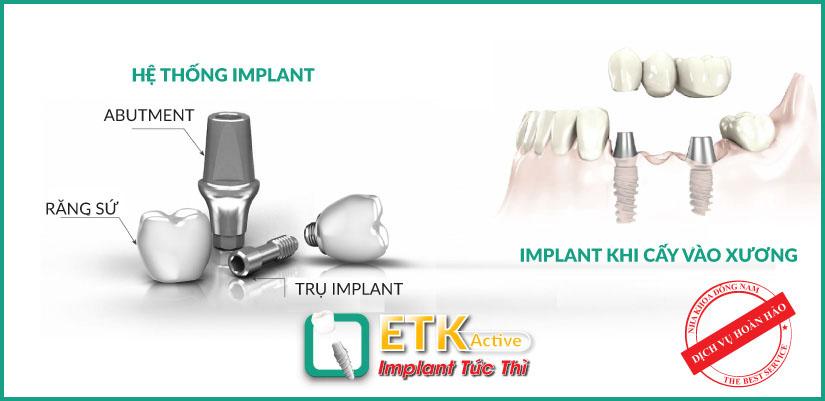 nha khoa đông nam ra mắt implant mới - etk active 8