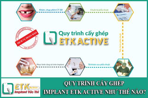 quy trình cấy ghép implant etk active như thế nào