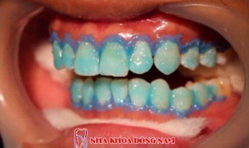 Quy trình tẩy trắng răng tại phòng khám nha khoa 2