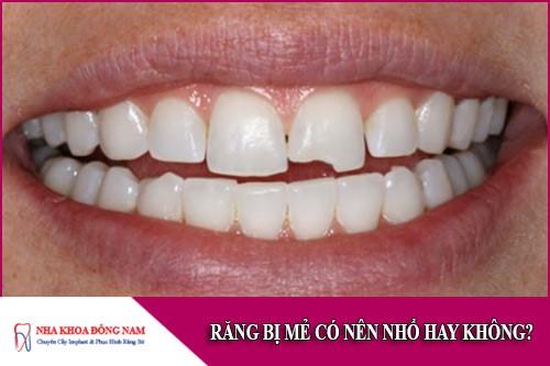 răng bị mẻ có nên nhổ hay không