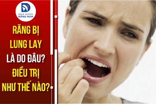 răng bị lung lay do đâu điều trị như thế nào