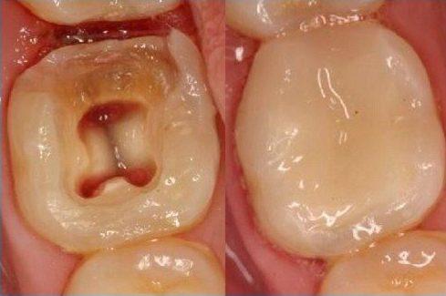 răng đã chữa tủy rồi có bọc sứ được không 2