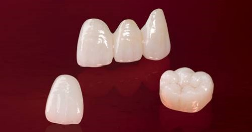 răng toàn sứ emax