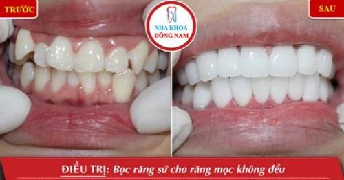 làm 2 hàm răng sứ cho răng mọc không đều