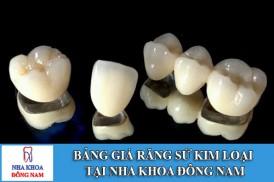 Bảng giá răng sứ kim loại tại Nha Khoa Đông Nam