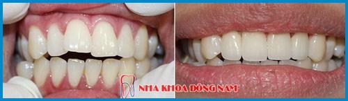 Bảng giá răng sứ Zirconia tại Nha Khoa Đông Nam 10