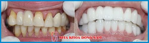 Bảng giá răng sứ Zirconia tại Nha Khoa Đông Nam 6