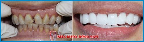 Bảng giá răng sứ Zirconia tại Nha Khoa Đông Nam 7