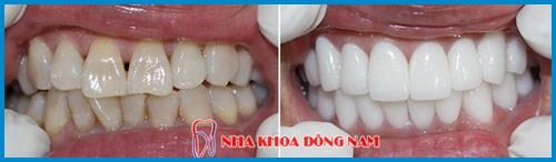 Bảng giá răng sứ Zirconia tại Nha Khoa Đông Nam 8