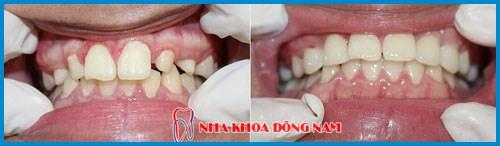 Bảng giá răng sứ Zirconia tại Nha Khoa Đông Nam 9