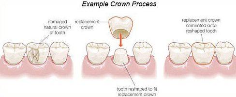 Bọc răng sứ nguyên hàm xài có bền không 1