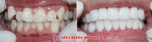 Bọc răng sứ nguyên hàm xài có bền không 11