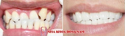 Bọc răng sứ nguyên hàm xài có bền không 12