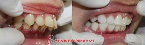 Bọc răng sứ nguyên hàm xài có bền không 3