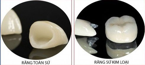 Bọc răng sứ nguyên hàm xài có bền không 4