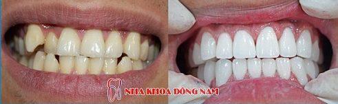 Bọc răng sứ nguyên hàm xài có bền không 8