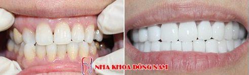 Bọc răng sứ nguyên hàm xài có bền không 9