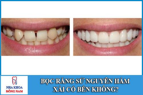 Bọc răng sứ nguyên hàm xài có bền không