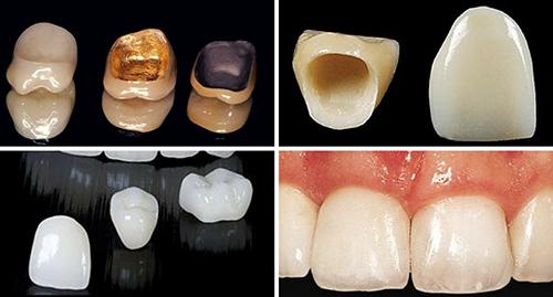Các loại mão răng sứ được sử dụng hiện nay