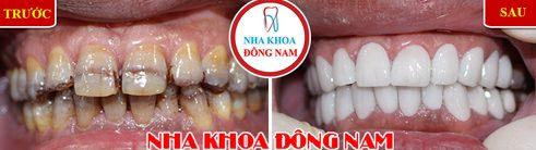 Các loại răng sứ trên thị trường hiện nay 10