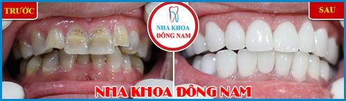 Các loại răng sứ trên thị trường hiện nay 11