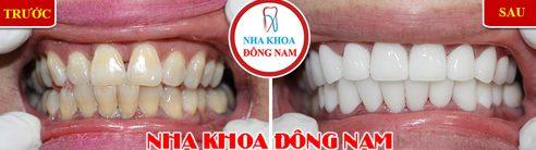 Các loại răng sứ trên thị trường hiện nay 12