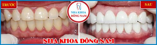 Các loại răng sứ trên thị trường hiện nay 13
