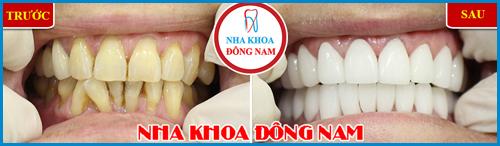 Các loại răng sứ trên thị trường hiện nay 14
