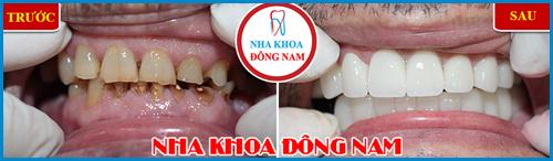 Các loại răng sứ trên thị trường hiện nay 16