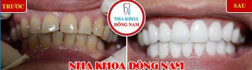 Các loại răng sứ trên thị trường hiện nay 17