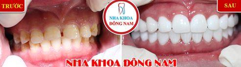 Các loại răng sứ trên thị trường hiện nay 19