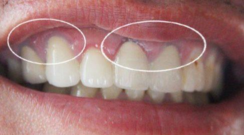 Các loại răng sứ trên thị trường hiện nay 2