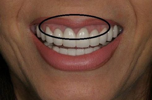 Các loại răng sứ trên thị trường hiện nay 4
