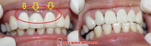 Các loại răng sứ trên thị trường hiện nay 6