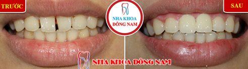 Các loại răng sứ trên thị trường hiện nay