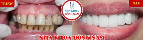 Các loại răng sứ trên thị trường hiện nay 8