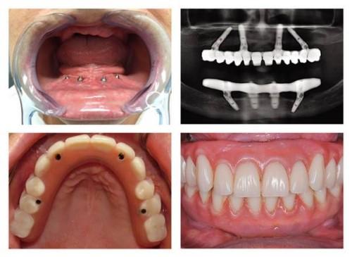 kỹ thuật trồng răng implant all on 4