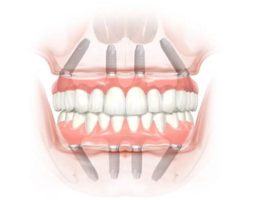ưu điểm của implant all on 4