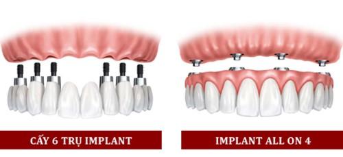 trồng răng implant all on 4 bao nhiêu tiền