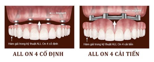 implant all ọn 4 nha khoa đông nam