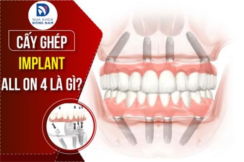 Implant All On 4 là gì? Có NÊN cấy ghép hay KHÔNG?