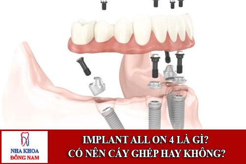 Implant All On 4 là gì? Có nên cấy ghép hay không
