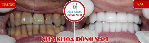 Bọc răng sứ 2 hàm cho răng nhiễm màu kháng sinh