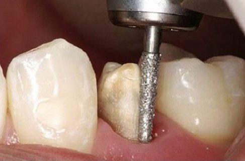 Kỹ thuật bọc răng sứ theo tiêu chuẩn quốc tế hiện nay 3