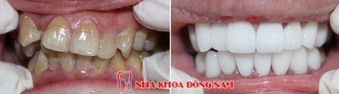 Kỹ thuật bọc răng sứ theo tiêu chuẩn quốc tế hiện nay 4