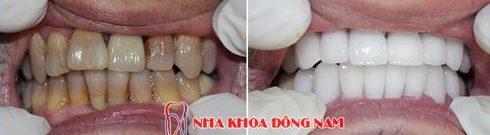 Kỹ thuật bọc răng sứ theo tiêu chuẩn quốc tế hiện nay 6